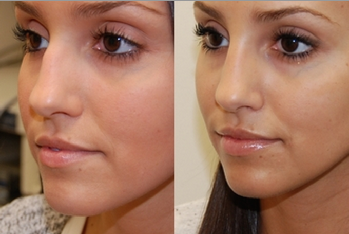 Bangkok non surgical nose job