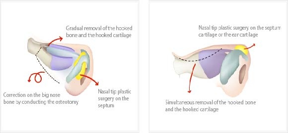 Ostetomy for rhinoplasty