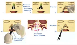 Septoplasty surgery bangkok thailand