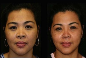 Asian Rhinoplasty Bangkok
