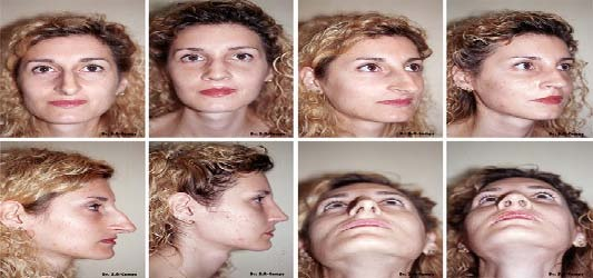 septoplasty before and after