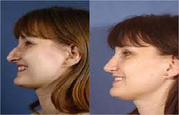 Asian Rhinoplasty thailand